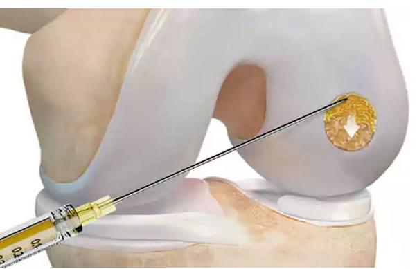 Neues Knorpeltherapieverfahren mit nur einer Operation